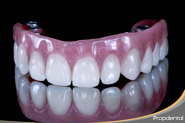 prótesis de metal resina sobre implantes
