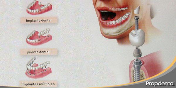 segunda opinión tratamiento con implantes dentales