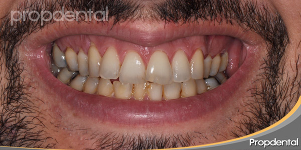 sonrisa antes de la estética dental