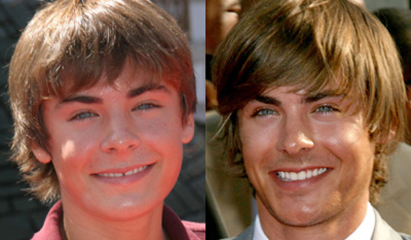 sonrisa Hollywood antes y después