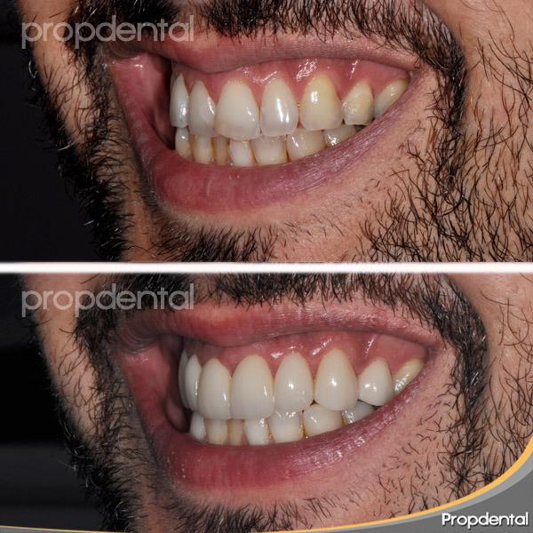 sonrisa paciente con carillas en propdental
