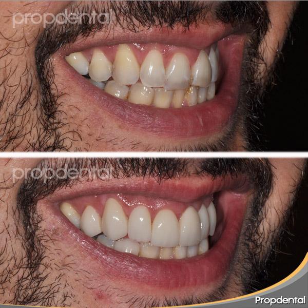 sonrisa paciente de estética dental