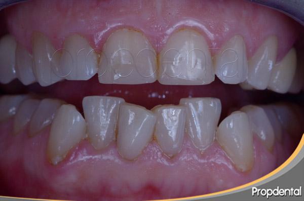 terceros molares y apiñamiento de los dientes anteriores