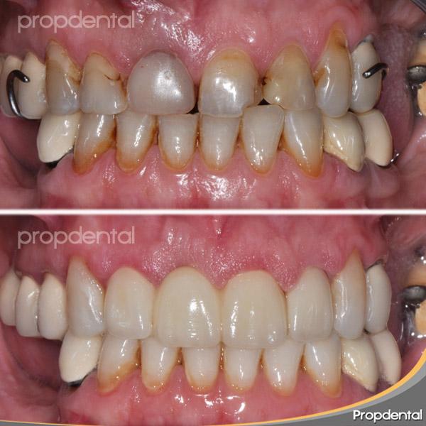 tipos de cerámicas dentales