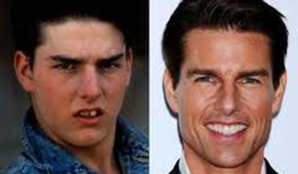 Tom Cruise sonrisa perfecta