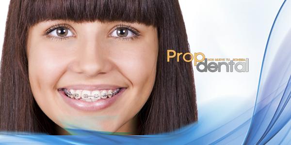 tratamiento de ortodoncia de las discrepancias gingivales 02