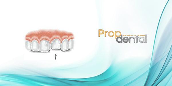 tratamiento luxaciones dentales