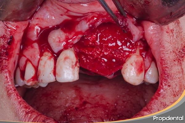 Injerto óseo para implantes dentales