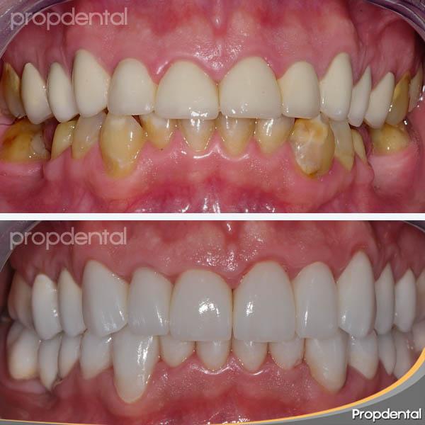 antes y después del caso clínico de estética dental