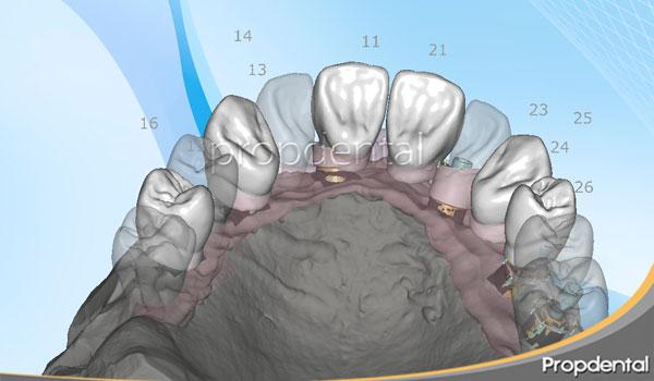 cad cam prótesis sobre implantes dentales
