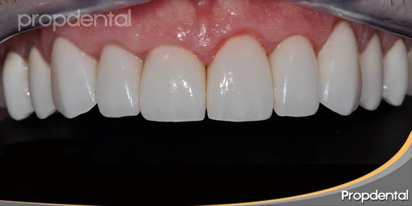 caso clínico circonio dental