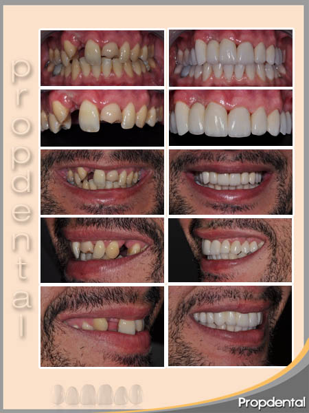 caso clínico de coronas dentales