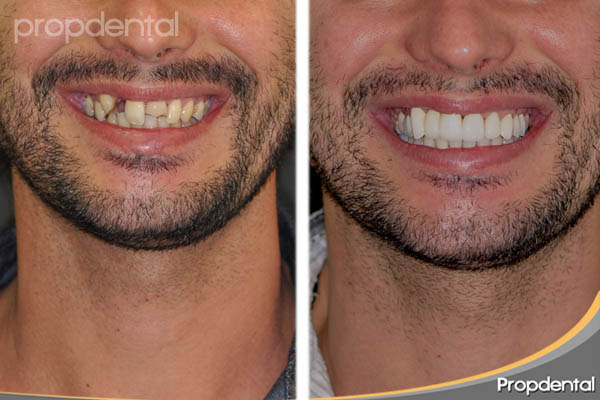 caso clínico de estética dental propdental