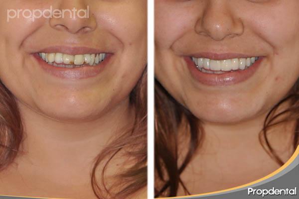 antes y después con prótesis de circonio