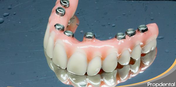 criterios que se siguen a la hora de personalizar las prótesis