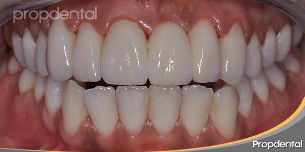 dientes blancos de circonio