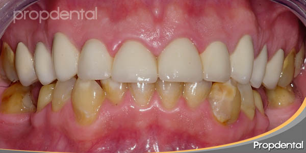 dientes inferiores amarillos