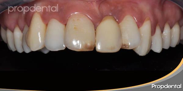 dientes mas posicionados
