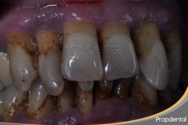 enfermedad periodontal avanzada