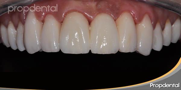 fundas dentales de circonio