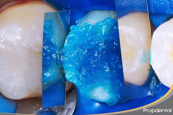 grabado ácido de un diente