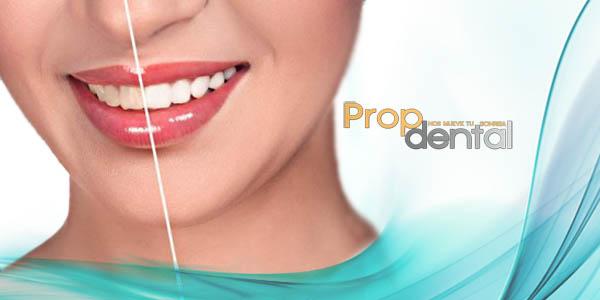 los logros del blanqueamiento dental