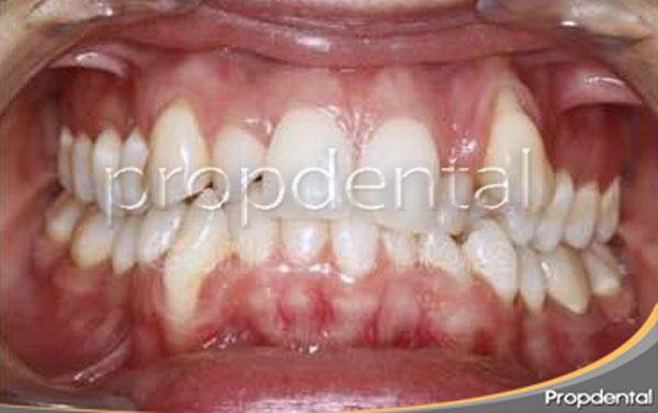 ortodoncia-damon-antes