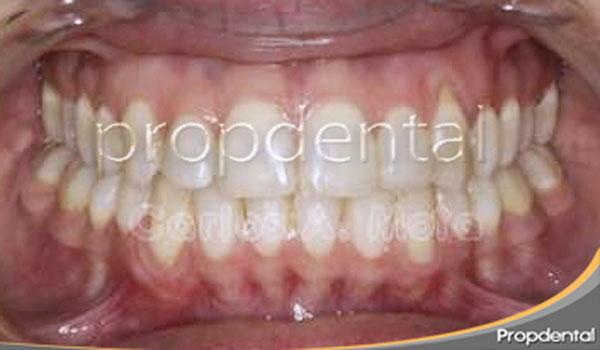 ortodoncia-damon-despues