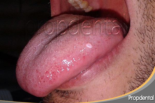 papiloma lengua