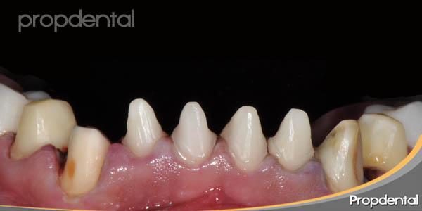 preparación para coronas dentales