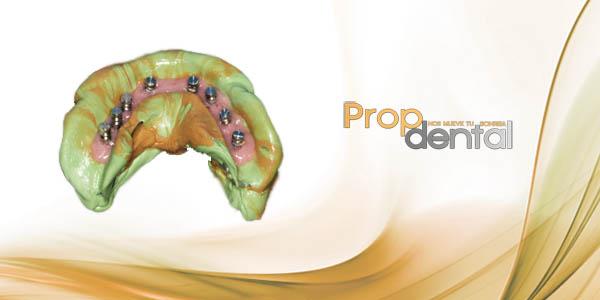 prostodoncia sobre implantes