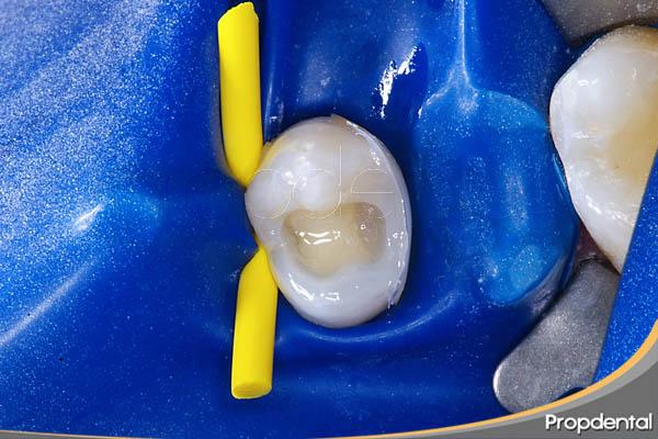 restauración del diente con composite