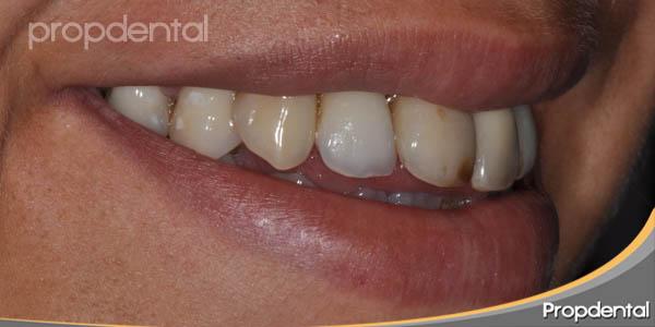 sonrisa derecha antes del tratamiento