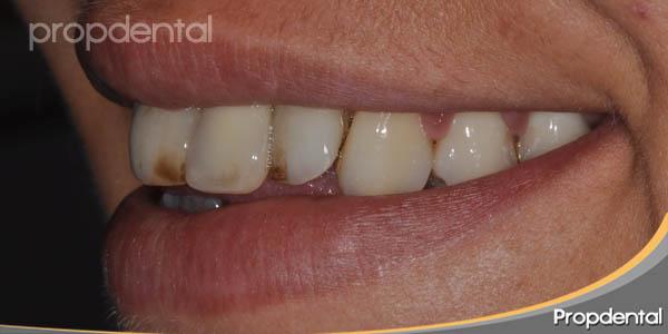 sonrisa izquierda antes del tratamiento