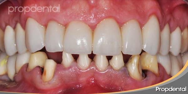 tallado dientes inferiores