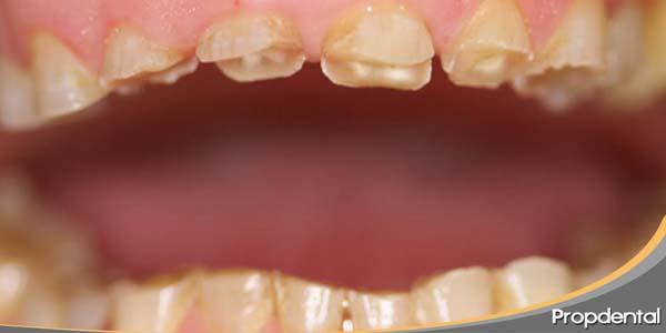 tengo bruxismo y los dientes desgastados