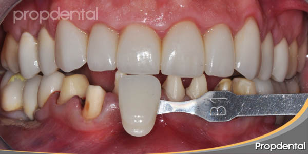 toma de color dientes inferiores