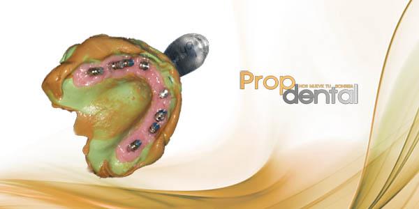 toma de impresiones para implantes dentales