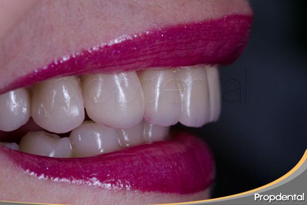 tratamientos-de-estética-dental