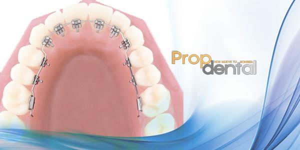 ventajas e inconvenientes ortodoncia lingual