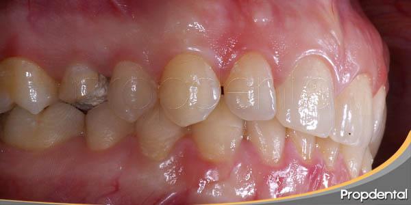 vista lateral del diente fracturado