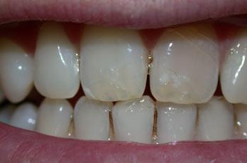 Manchas en los dientes por falta de calcio