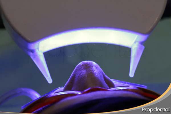 Precio del blanqueamiento dental combinado en Barcelona