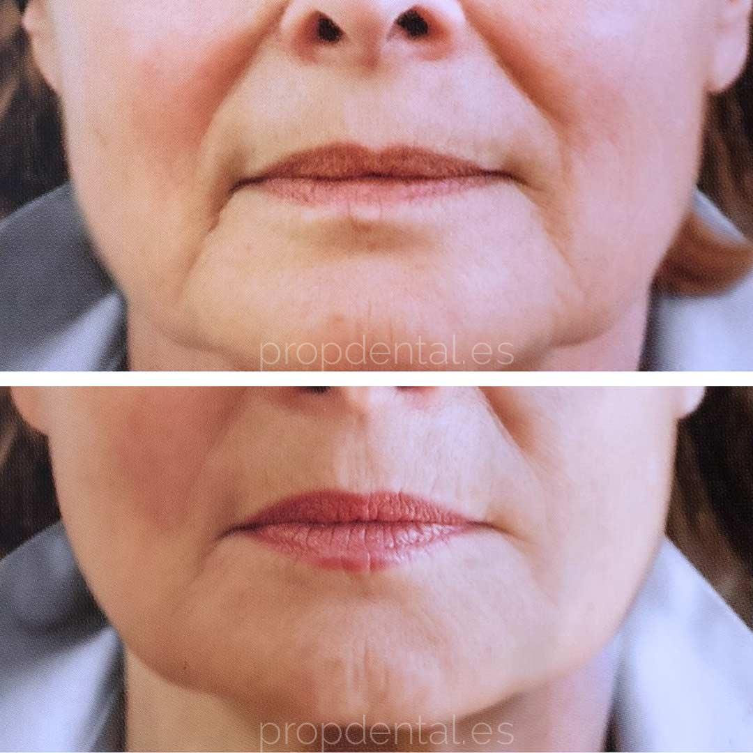 acido hialuronica labios barcelona