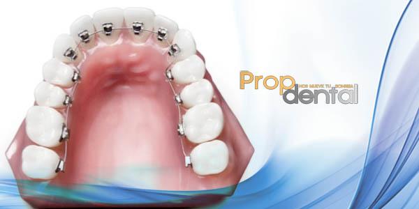 alineación de dientes
