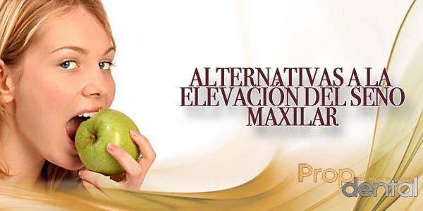 alternativas a la elevación del seno maxilar