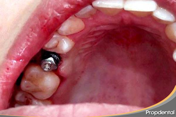 alternativas-de-sustitucion-de-un-diente-unitario