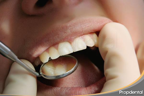 anomalías-en-el-número-de-dientes