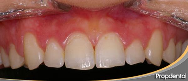 antes de alargar los dientes
