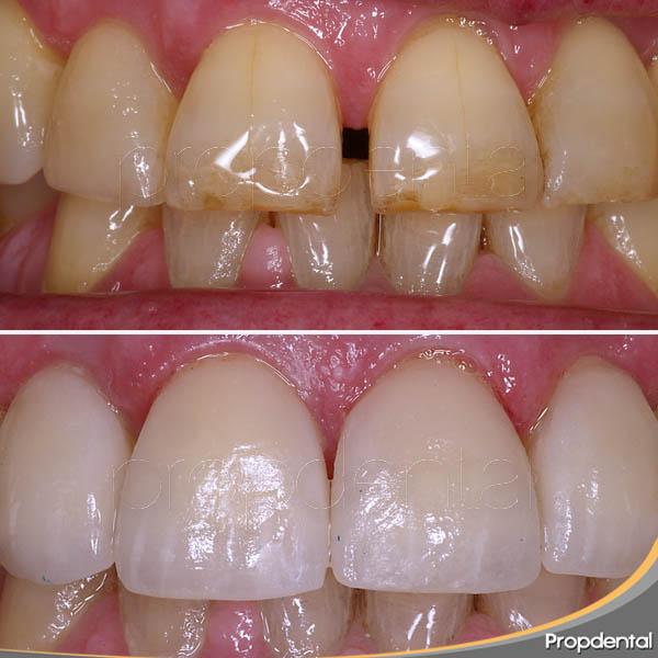 antes y después del cierre de diastemas con porcelana